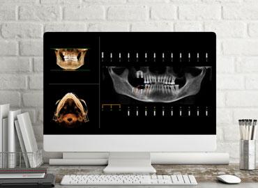 Escáner para Implantes Dentales