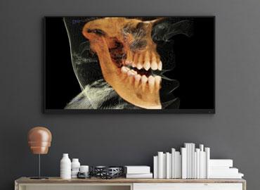 Escáner para cirugía maxilofacial
