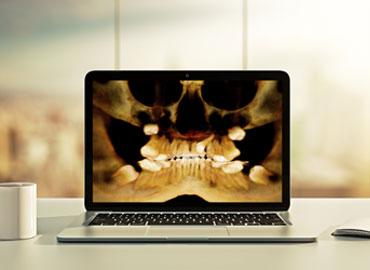 Escáner para ortodoncia en La Rioja