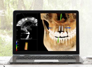 Escáner para periodoncia