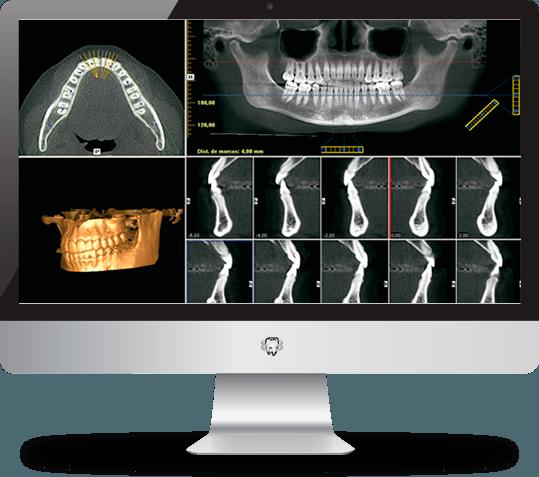 radiología en monitor