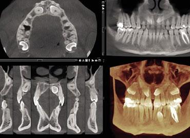 Escaner 3D CBCT Completo (Maxilar y mandibular)