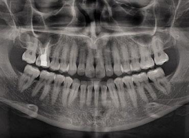 Ortopantomografía Escáner Dental Rioja